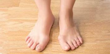 ayak deformite tedavisi ameliyatı