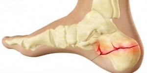 topuk kırıkları tedavi ameliyat