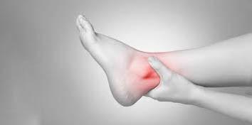 topuk kırıkları tedavi ameliyatı