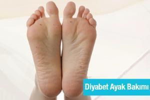 diyabetik ayak tedavisi